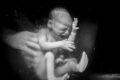 Birth Becomes Her, la magia del parto raccontata con la fotografia