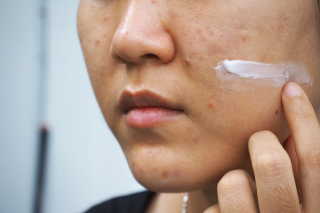 What-is-Skin-Purging_-Your-Skin-May-Get-Worse-Before-It-Gets-Better-320x213 Come trattare lo skin purging: consigli di bellezza