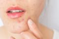Come trattare lo skin purging: consigli di bellezza