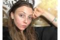 Free the Pimple: Lou Northcote e il movimento contro i filtri sui social